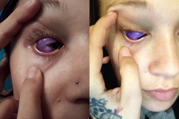 ▲加拿大模特兒嘉琳格接受眼白刺青,卻導致嚴重後果,悔不當初。(圖/翻攝自Catt Gallinger臉書)