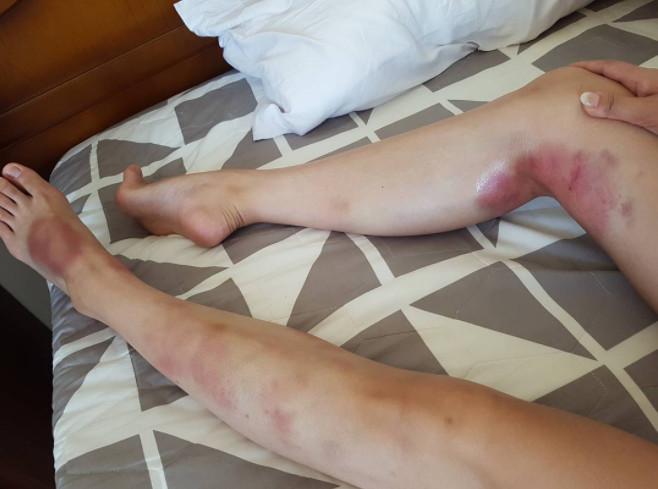▲▼ 韓女星裸鉛筆腿夾鋼管!辣舞後…「雙腳都是瘀青」。(圖/翻攝自Stephanie IG)
