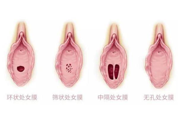 處女膜 處女膜形狀主要分6類「篩狀」和這型第一次會最痛! | ETtoday ...