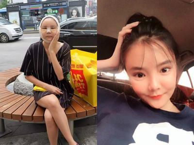 整完變豬頭!「泰國聖嫂」自PO腫臉照,美妝網紅變整型天后
