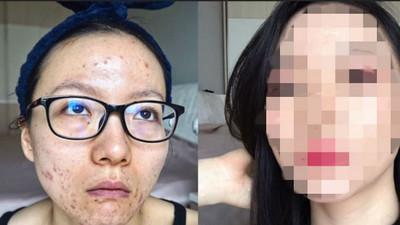 她因「痘痘膚質」不敢見人,修煉彩妝邪術後 網驚呼:好欠親啊!