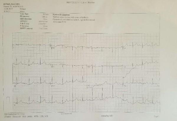▲▼募集網站中放上病患暴露在無線電前後的心電圖。(圖/翻攝自GoFundMe)