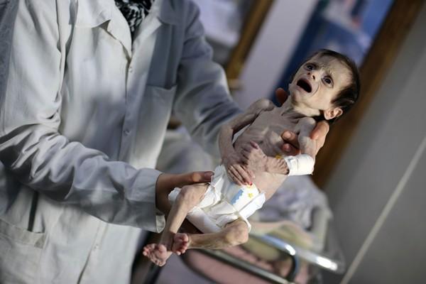 ▲叙利亚满月小女婴体重仅1900克,活活饿成干尸。(图/CFP)