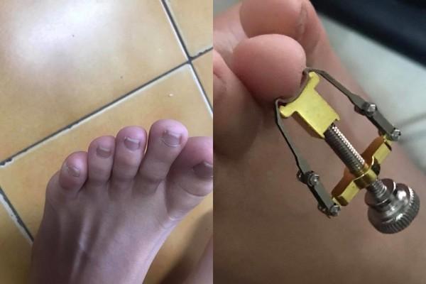 ▲走路老是拇指痛,你也有崁甲的困擾嗎? 崁甲矯正器開箱分享(圖/翻攝自爆料公社官網)
