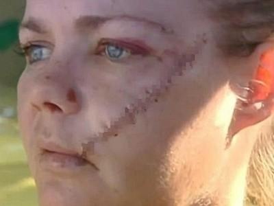 撿回一命的痕跡!遇盜賊襲擊,妻子「頰骨被切開」留巨大刀疤