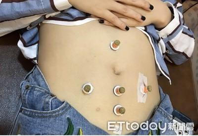 只吃水果、游泳...體質變差更難「瘦」!4大建議不復胖