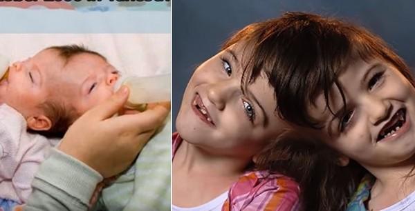 ▲加拿大「連頭雙胞胎」姊妹上月共度10歲生日。(圖/取自Youtube/The5biggest Montreal TV)