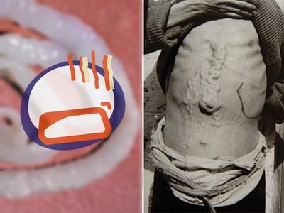 眼球中炸出爛肉..6種「最恐寄生蟲」可能就在你體內