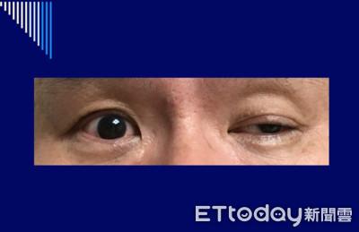 沒睡飽?左側眼瞼突下垂 50歲男意外揪出「腦中風」