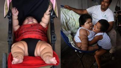 10月大巨嬰長不停,苦惱媽求助醫師:難道我的母乳太營養?