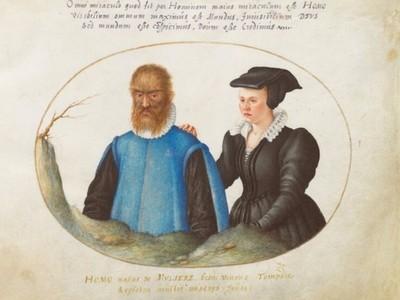 真實美女與野獸!16世紀「變異狼男」 被貴族當寵物..意外遇到真愛
