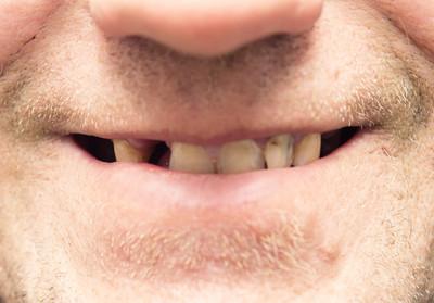 不刷牙會得阿茲海默症! 新研究發現「牙周細菌侵腦」造成退化