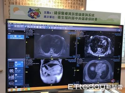 病患在大醫院做的影像檢查 元旦起診所從「雲端」就能查