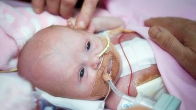 存活率不到10%!女嬰「心臟掛胸外」撲通跳 小手緊握爸媽