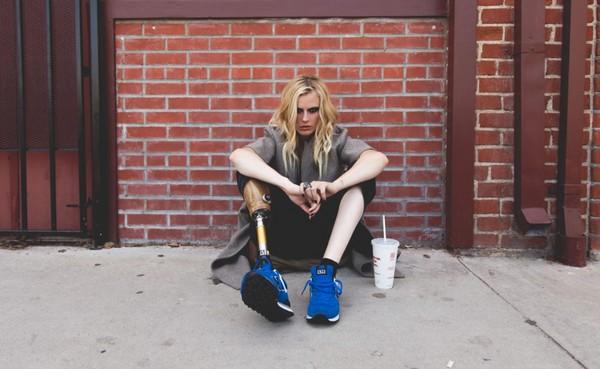 用衛生棉條後截肢 女模「每天活在痛苦」:左腿也不保