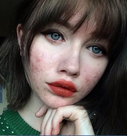 ▲卸濃妝零修圖! 網紅正妹大方秀「滿臉痘疤」驚嚇照。(圖/翻攝自Hailey Wait的Instagram)