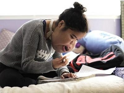奇蹟!「畸形臉」少女插管灌食一輩子 拼讀護理系渴望救人