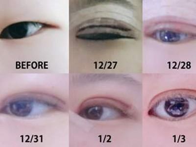 死魚眼變混血兒!韓妞公開割眼皮進化史 僅11天讓家人認不出