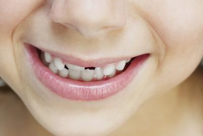 3歲女童不吃糖卻兩排黑牙 原來是「含飯」壞習慣惹禍!