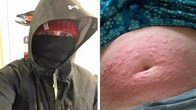 冬天出門會死!26歲女對「寒流低溫」過敏 靠冬眠延長生命