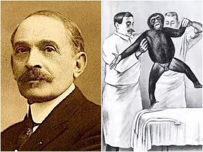 移植「猴睪丸」返老還童?2000人捧錢動手術 20年後發現無用