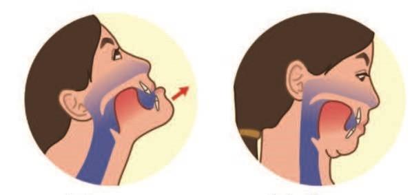 ▲《矯正牙齒可以不拔牙》。(圖/翻攝自pixabay)