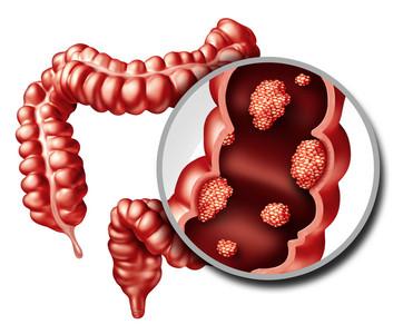 大腸癌發生率連2年下降 專家揭關鍵原因!