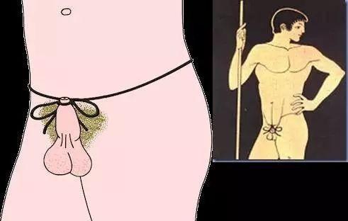 为何大卫雕像是包茎男? 古希腊人「割皮露头」