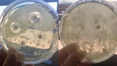 母乳超神!生物系媽媽「人奶浸培養皿」證明抗菌力完勝奶粉