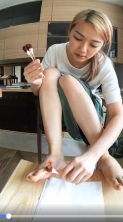 ▲▼邵庭拇指外翻「術後真貌」曝光(圖/翻攝自邵庭臉書)