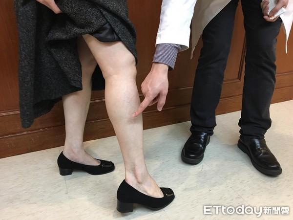 腳上布滿「藍色蜘蛛網」!他傷口流膿潰爛…一查症狀已10年 醫:5徵兆快就診