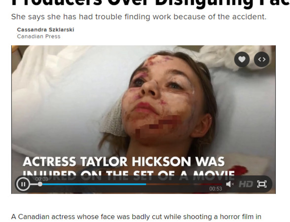 泰勒希克森(Taylor Hickson)臉被碎片割傷。(圖/翻攝自《HUFFPOST》)