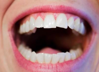 黃垢老刷不乾淨?醫解析「3類型牙齒美白」:自己亂用超傷!