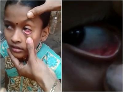 眼球生螞蟻!女孩劇痛揉出60具蟻屍 求醫點藥仍每天繁殖