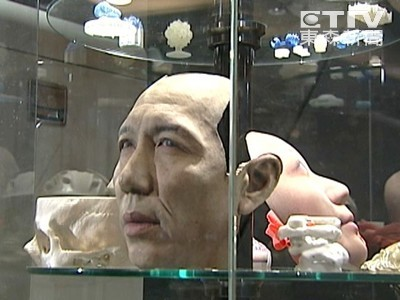 江蘇男捲入機器毀容 3D列印幫他「中國式換臉」