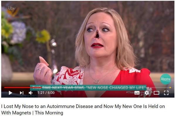 電視直播她突然拔掉鼻子 五官藏「凹陷大洞」嚇壞觀眾。(圖/翻攝自This Morning的YouTube)