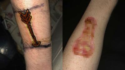 硬漢想燙「箭頭烙印」在手上 2個月傷癒後…永遠多一根○了