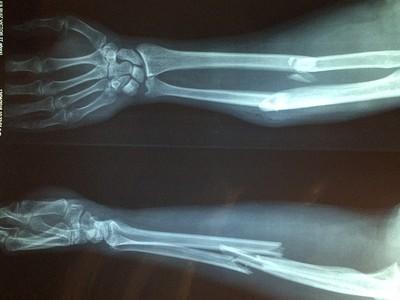跌倒骨折死亡率提高!骨質疏鬆5種風險族群 提早存骨本