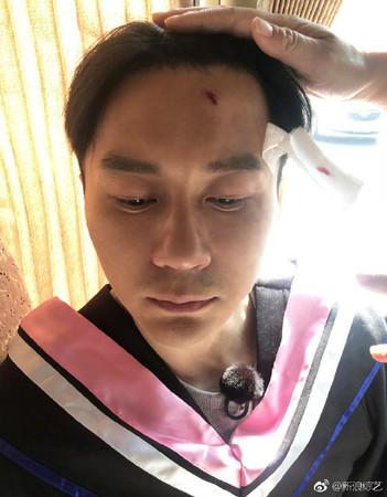 ▲▼李晨《跑男》錄影驚傳意外!(圖/翻攝自微博)