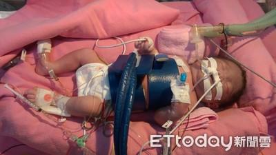 生出嚴重貧血休克 竟是這病讓她「倒灌240ml血」回母體