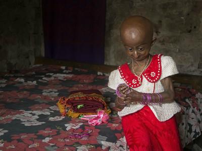 十歲女童罹患「早衰症」,狹小五官+鳥型禿頭被嘲外星人詛咒