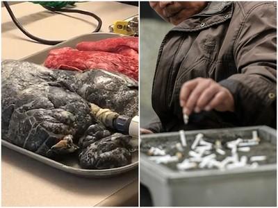 吸菸20年VS健康的肺!每天抽不停→肺全焦黑+吐氣後一秒扁塌