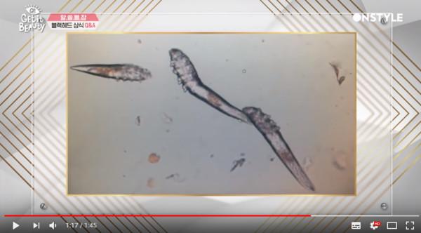 一人一生中大約會養活44億隻毛囊蟲。(圖/翻攝自Youtube/OnStyle)