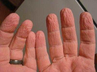 人體「無用部位」功能意想不到!闌尾、手泡水變皺...通通有用