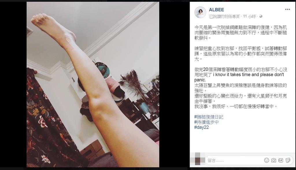 ▲albee肌肉萎縮。(圖/翻攝自albee臉書)