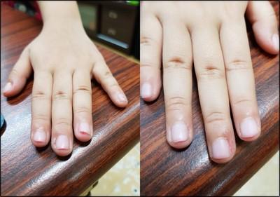 女童被強迫剪甲 10手指見血見肉