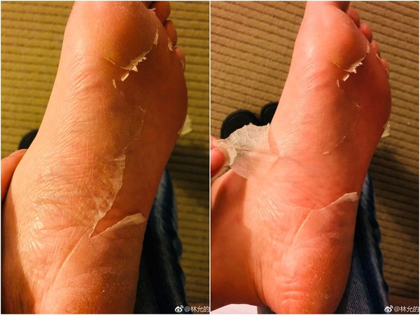 ▲林允大方紀錄親手撕下的大片腳皮。(圖/取自林允微博)