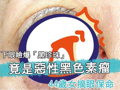 影/下眼瞼爆「黑珍珠」竟是惡性黑色素瘤 44歲女摘眼保命