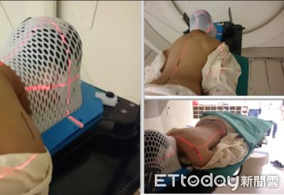 11歲童頭痛到吐 竟是「惡性脈絡叢瘤」在大腦爆炸了