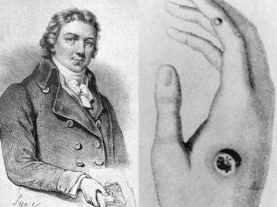 刺破牛皮爛膿包注入妻子手臂!這是史上第一支研發成功的疫苗…